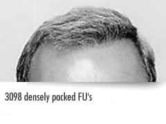 densely packed follicular units