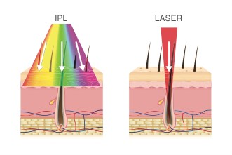 ipl and laser